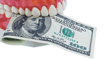 How To Get A Cheaper Dental Implant? Here Are 5 Ways