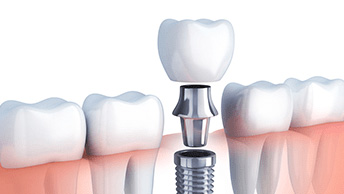 Ways To Get Cheap Dental Implants And Save On US Dental Care