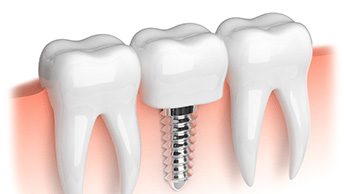What You Need To Know About Dental Implants Costs